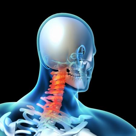chest x ray: Illustrazione di rendering 3D - collo doloroso Archivio Fotografico