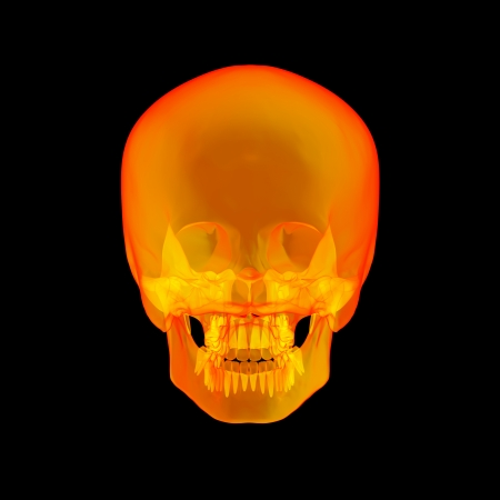 Isolated human x ray skull on black background - back view photo