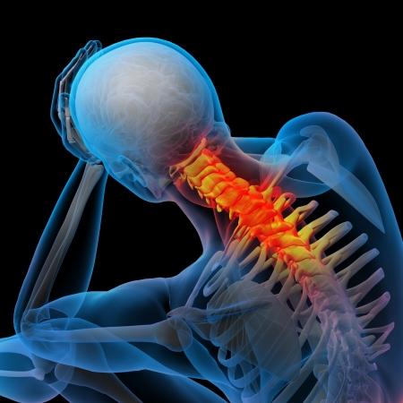 collo: Illustrazione di rendering 3D - dolore al collo Archivio Fotografico