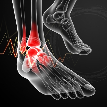 foot pain: Ankle pain