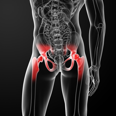 3d rendered, medical illustration of a painful hip joint - back view