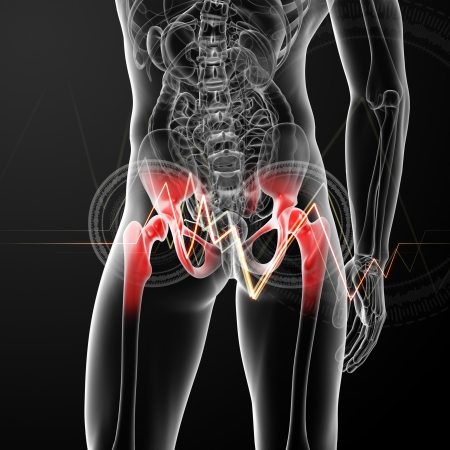 3d rendered, medical illustration of a painful hip joint - back view illustration