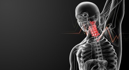 3d rendered illustration - pain neck Stock Photo