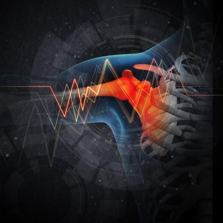 dolor hombro: Dolor en el hombro humano con la anatom�a de un hombro esqueleto