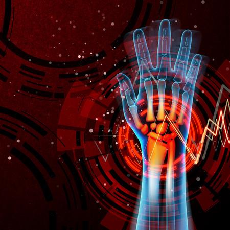 phalanx: 3d rendered anatomy illustration - hand pain