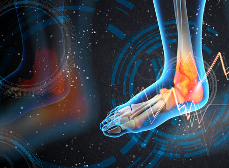 ankle: Ankle pain - detail