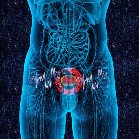 cystitis: 3d render medical illustration of the bladder pain
