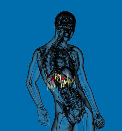 adrenal: 3d render medical illustration of the  adrenal  pain - side view