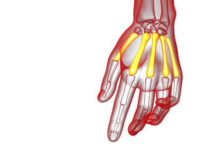 phalanx: 3d render medical illustration of the metacarpal bone - front view Stock Photo