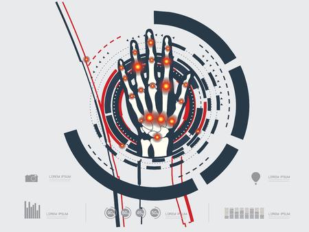distal: ilustraci�n vectorial de una mano artr�tica