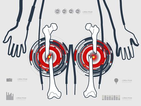Ilustración vectorial de la fractura de la pierna Foto de archivo - 44119303
