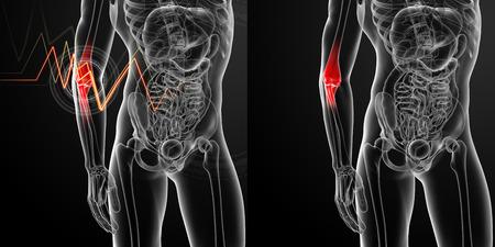 3d render medical illustration of the arm pain
