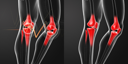 patella: 3D rendering human knee pain with the anatomy of a skeleton leg