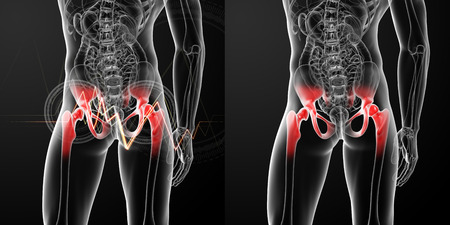 3D rendering medical illustration of a painful hip joint  Stock Photo