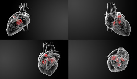 tricuspid valve: 3D rendering of the Heart valve Stock Photo