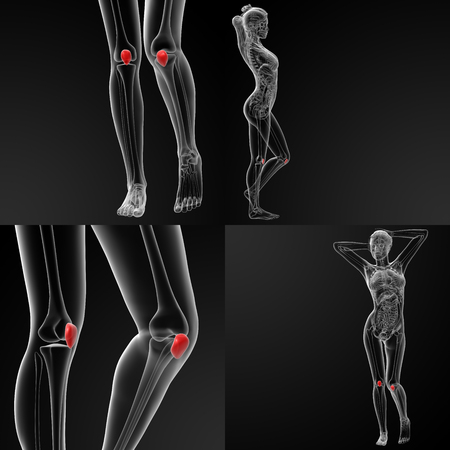 3D rendering illustration of the  patella bone