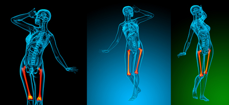 3d rendering medical illustration of the femur bone Stock Photo