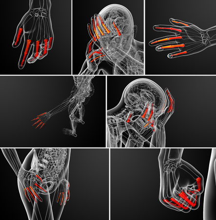 phalanges: 3d rendering  illustration of the human phalanges hand Stock Photo