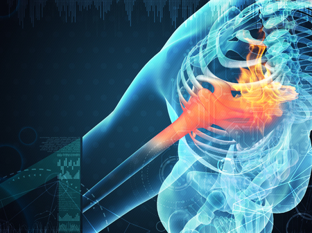 3D rendering human shoulder pain with the anatomy of a skeleton shoulder Stock Photo - 83363847