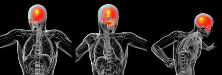 3d rendering medical illustration of the upper skull
