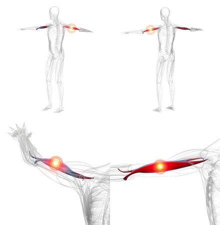 3d rendering illustration of red and pain biceps muscle x-ray collection