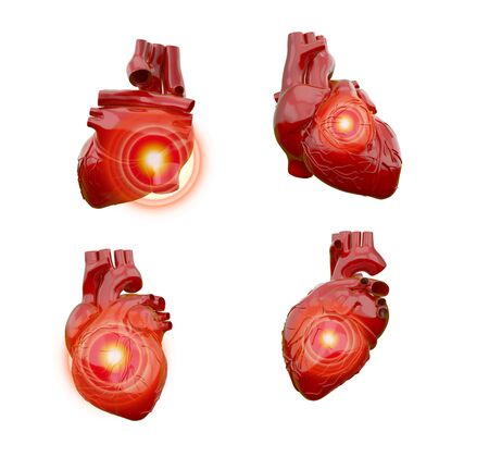 3d rendering illustration of pain heart collection