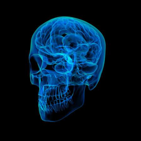 Human brain X ray - side view