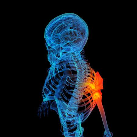 3d rendered human of sholderd pain