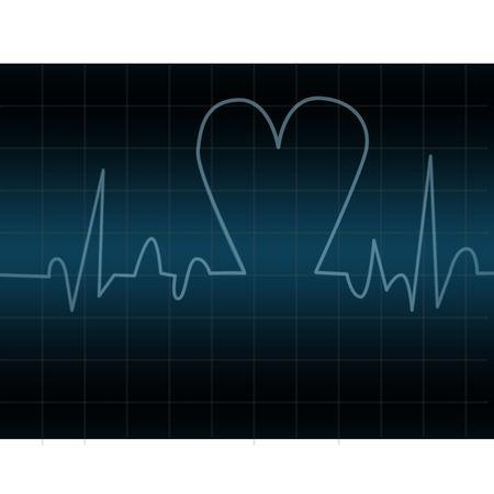 electrocardiograma: Electrocardiograma con forma de coraz�n