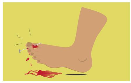 blood flow: Nail piercing, lesioni del piede e il flusso sanguigno. Vettoriali