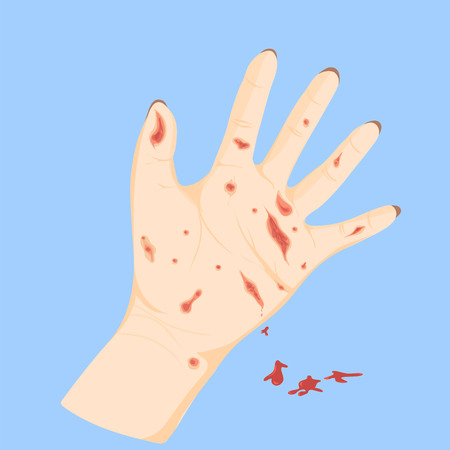 Vector Illustration Wound in the hand on a blue background. Stock Illustratie