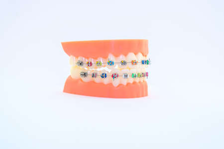 colorful  brackets at teeth isolated on a white backgroung