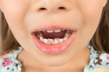 mouth close up: A close-up of an open mouth of a little girl showing milk teeth and two growing permanent tetth Stock Photo