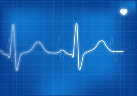 ailing: Electrocardiogram Stock Photo
