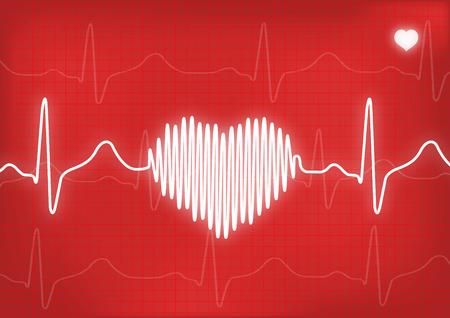 human heart: EKG