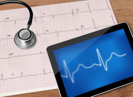 human heart: Electrocardiograma y un estetoscopio