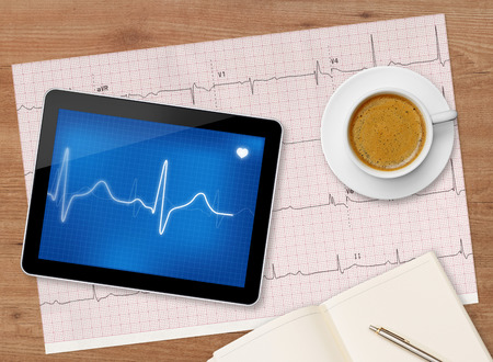 taking pulse: Electrocardiogram exam