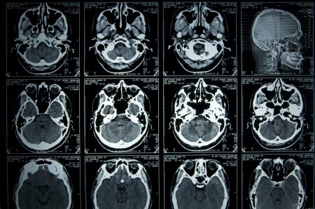 MRI Scan brain Stock Photo - 19116795