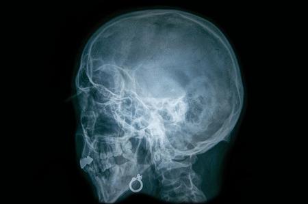 Radiografia di un cranio umano Archivio Fotografico - 59001810