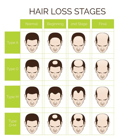 Information chart of hair loss stages and types of baldness illustrated on a male head. Ilustração