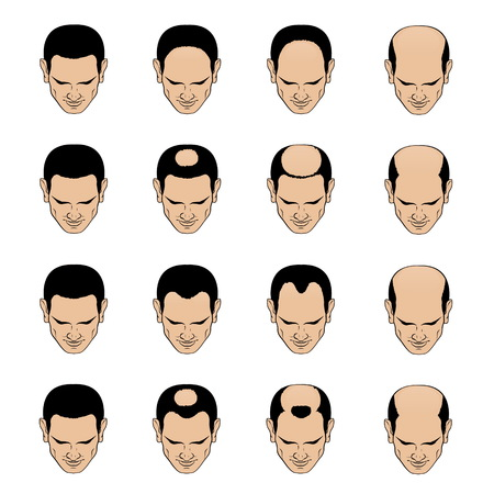 Information chart showing types and stages of hair loss for men. Bolding head from full hair cover to a final stage of baldness.