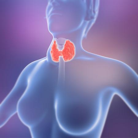 goiter - thyroid gland enlargement