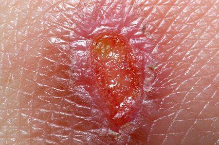 injured skin