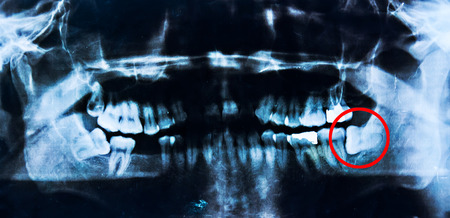 impacted: X- ray images  of  tooth extraction