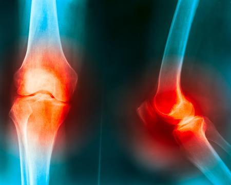 artrosis: dolor en las articulaciones de la rodilla causa por Truma rodilla, gota, artritis, osteoartritis de la rodilla