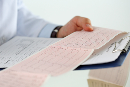 systole: Male medicine doctor hands holding cardiogram chart on clipboard pad closeup. Cardio therapeutist assistance, physician make cardiac physical, heart rate measure document, arrhythmia concept