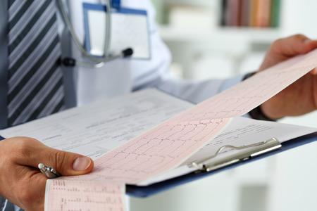 myocardium: Male medicine doctor hands holding cardiogram chart on clipboard pad closeup. Cardio therapeutist assistance, physician make cardiac physical, heart rate measure document, arrhythmia concept