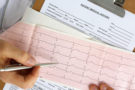 systole: Male medicine doctor hands hold and show to patient cardiogram chart on clipboard pad. Cardio therapeutist assistance, physician make cardiac physical, heart rate measure document, arrhythmia concept Stock Photo
