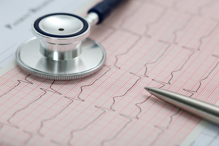 pacemaker: Stethoscope head and silver pen lying on cardiogram on clipboard pad. Cardio therapeutist assistance, physician make cardiac physical, pulse beat measure document, arrhythmia idea, pacemaker concept Stock Photo
