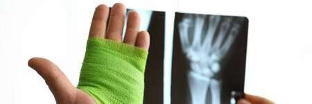 Close-up hand wrapped in bandage and x-ray hand. Selection bandages from assortment necessary length, width and degree extensibility. Wrist repair process. Bandage for immobilization wrist